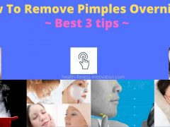 How To Remove Pimples Overnight Permanently