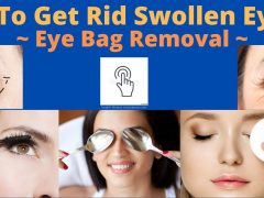How To Get Rid Swollen Eyelids