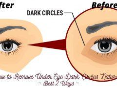 How to Remove Under Eye Dark Circles Naturally