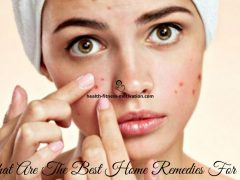 What Are The Best Home Remedies For Acne