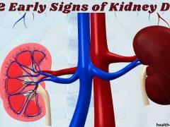 Best 12 Early Signs of Kidney Disease